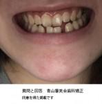 受け口、すきっ歯、しゃくれが気になる 受け口治療すると治る? 社会人だと期間や治療費は?
