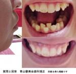 祖母も母もなので生まれつき 口元がでて 顎に梅干し 先天的な口ゴボ 歯科矯正で治る?