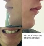 下唇の下が凹み 顎が出てシャクレに見える 顎の出っ張りをなくしたい  どの治療で改善?費用は?