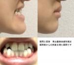 33歳 小学2-3年まで受け口で矯正 前歯は前にあるが、噛み合わせや顎ラインを治したい 手術が必要と言われ