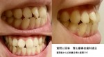 前歯と受け口が気になります。 治せますか? 料金は?できるだけ安く治したい