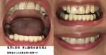 正中線をあわせたい 乱杭歯で上下の噛み合わせあわず 上下の矯正が必要? 上だけの部分矯正は可能?
