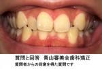 この歯並びで、 上前歯だけの部分矯正は可能ですか?