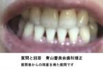 矯正が終わったのですが、下の歯にブラックトライアングルがきく出来てしまい