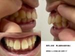 高校3年 前の歯が大きく歯が傾斜し口がが閉じづらく、歯の間に隙間が  矯正やセラミック治療の費用は?