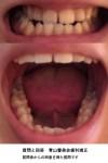 下の歯が少し前に出て 受け口気味 歯科では矯正で受け口は治せず手術の必要があると? 費用は?