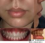 口元(上顎?上唇?)盛り上がりが気になり 矯正治療でこの口元の突出感のほうれい線は改善される?