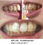 前歯2本が斜めで出っ歯です 私は、部分矯正は出来ないのでしょうか?