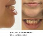 しゃくれ、受け口、顔の歪み、顎の関節から音がする 顎変形症でしょうか?