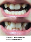 前歯横に1本ずつ(計2本)八重歯が、矯正を検討中 大体の費用と期間、矯正方法が知りたい