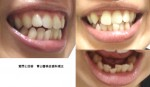 下の出ている歯だけを治すと費用と時間は? 上の八重歯はおいておいて