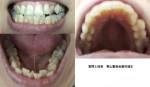 乱杭歯が酷い 何本抜歯の必要性?  マウスピース矯正、部分矯正は無理? 49歳