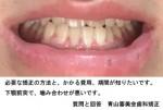 必要な矯正方法と費用、期間が知りたい。 下顎前突で噛み合わせが悪い