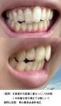 左前歯が右前歯に重なっている状態 この前歯は部分矯正では厳しい?