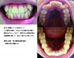 写真の通り八重歯といった状況 この歯列の治療方法は?  施術内容と治療期間教えて