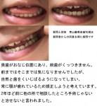 奥歯がおなじ位置にあり、前歯がくっつきません。常に顎が疲れて矯正したい 手術じゃないと治せないと