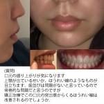 矯正治療でこの口元の突出感からくるほうれい線は改善される?