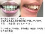 歯科矯正を検討 この歯並びは、部分矯正(前歯)は可能? 大体の費用は?