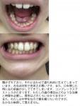 顎がずれて 歯も斜めに生えて 左右非対称で見栄えが悪い コンプレックスでストレス