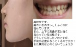 歯の位置のズレとしゃくれに悩んで 奥歯が常に強く当たる状態 手術が必要?費用は?