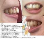 前歯2本が斜めで出っ歯 虫歯で抜歯 今は歯科用ボンドで仮歯 部分矯正出来ないと言われ
