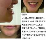 顎変形症? しゃくれ、受け口、顔の歪み、顎の関節からゴリゴリ音がする
