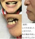 上顎と下顎が左側にずれ、口を閉じた時も歪んいます