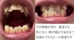下の前歯が折れ 歯並びも気になり、部分矯正で治せる? 舌側かマウスピース希望
