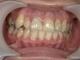 前歯の目立つ治療跡