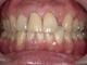 セラミック+ホワイトニング 治療症例・28