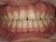 セラミックで歯並びを整える 治療症例