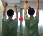 腕の可動域が広がります。日常生活の幅も広がります。
