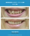 ガミースマイル治療(歯冠長延長術)