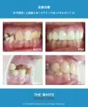 虫歯治療1