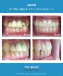 保険治療の差し歯の変色