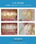 出っ歯治療(セラミック法)