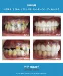 多数の虫歯治療(セラミック法)