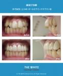 歯並び治療(セラミック法)
