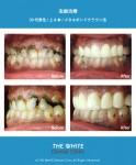 多数の虫歯治療(短期集中治療)