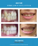 歯並び治療(セラミック法による矯正)
