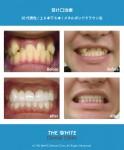 受け口と歯並び治療(セラミック法による矯正)
