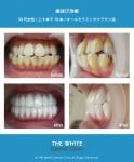 歯並び、出っ歯治療(セラミック法による矯正)
