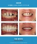 治療後の歯の変色