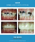 黒く変色した虫歯の短期治療