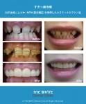 部分矯正を併用したすきっ歯治療