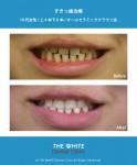 セラミック法によるすきっ歯治療