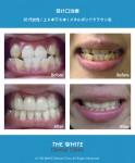 受け口と歯並び治療(セラミック法)