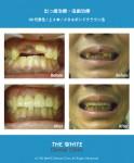 セラミック法による虫歯と出っ歯の短期治療