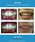 セラミック法による歯並び治療